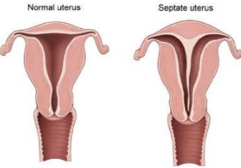 Uterine Septum