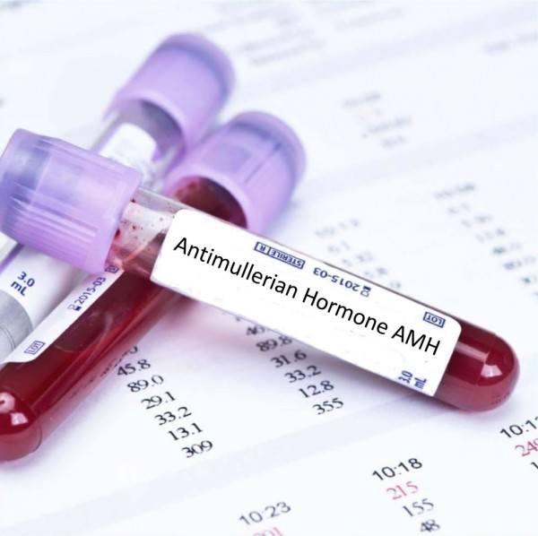 low Anti-Müllerian Hormone (AMH)