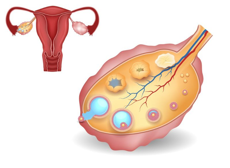 Graphic Image for Ovulation Induction